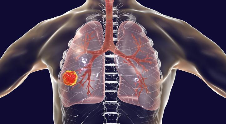 New Treatment Shrinks Lung Tumors Related to Ground Zero Exposure